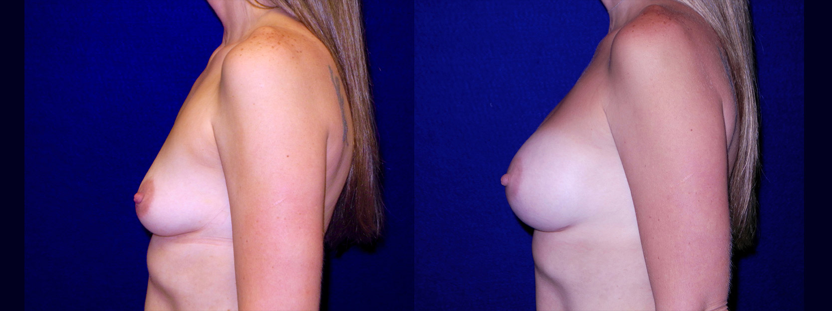 Left Profile View - Breast Augmentation After Pregnancy - Silicone Implants