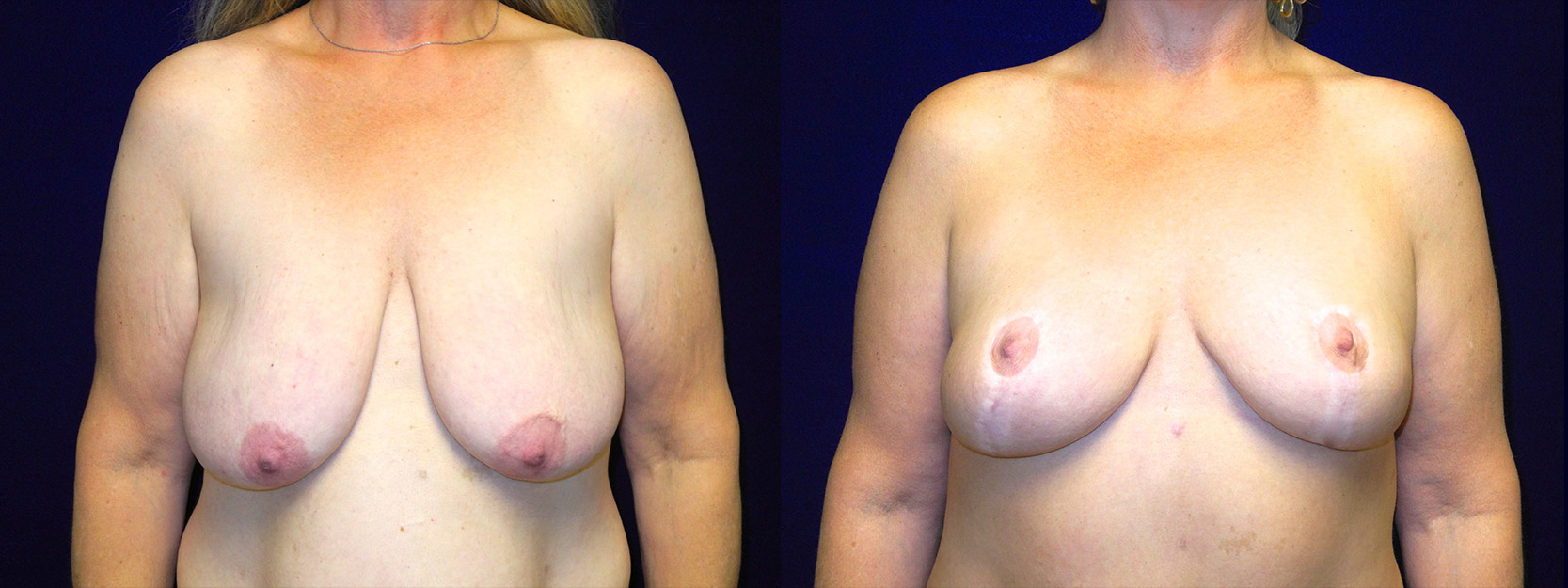 Frontal View - Breast Lift After Massive Weight Loss