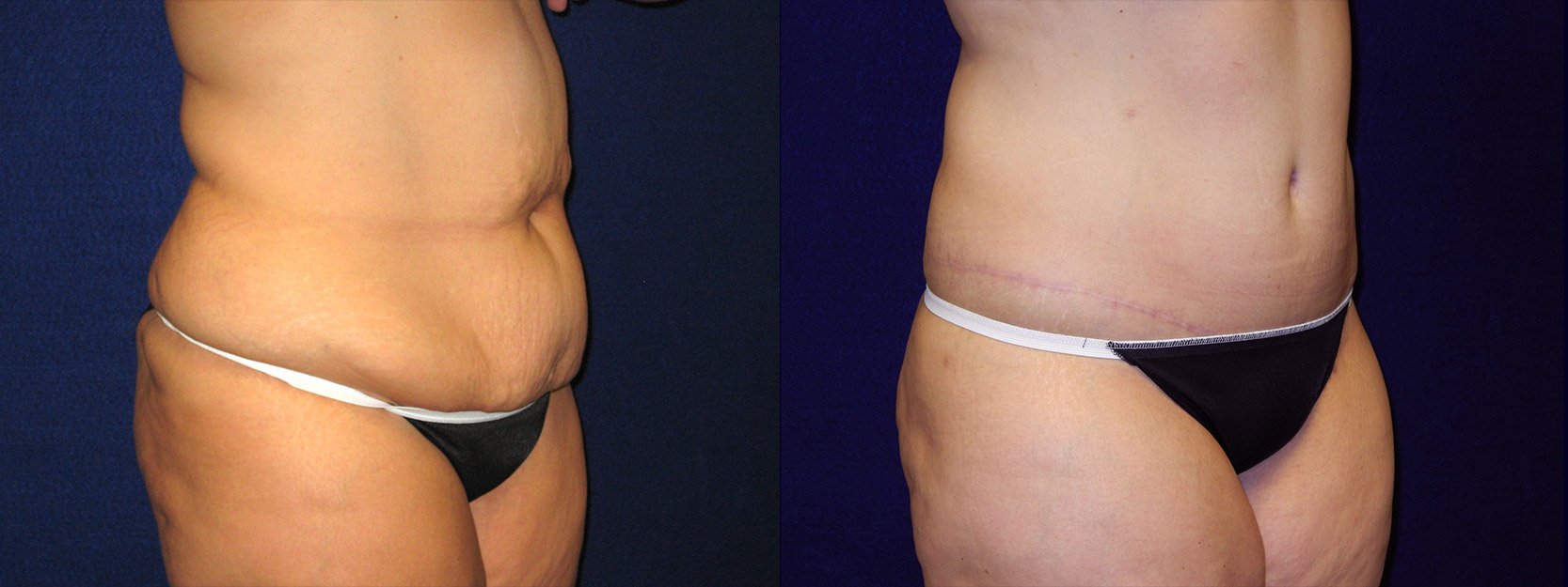 Right 3/4 View - Abdominoplasty After Massive Weight Loss