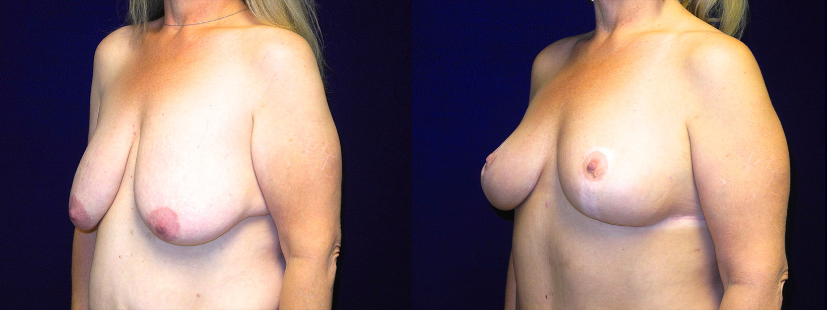 Left 3/4 View - Breast Lift After Massive Weight Loss