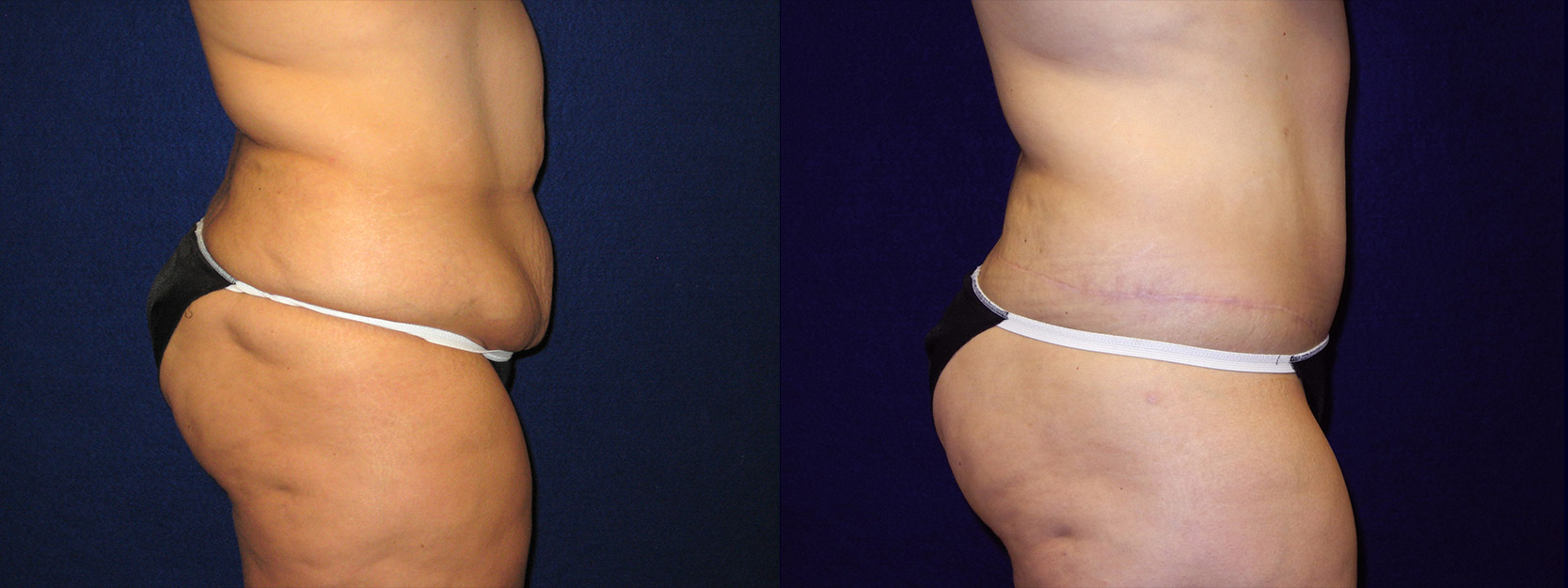 Right Profile View - Abdominoplasty After Massive Weight Loss