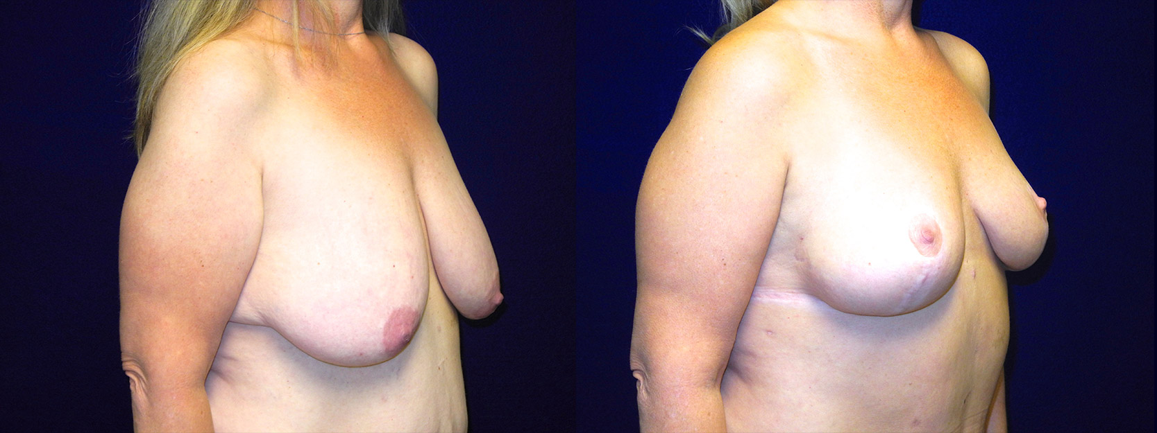 Right 3/4 View - Breast Lift After Massive Weight Loss