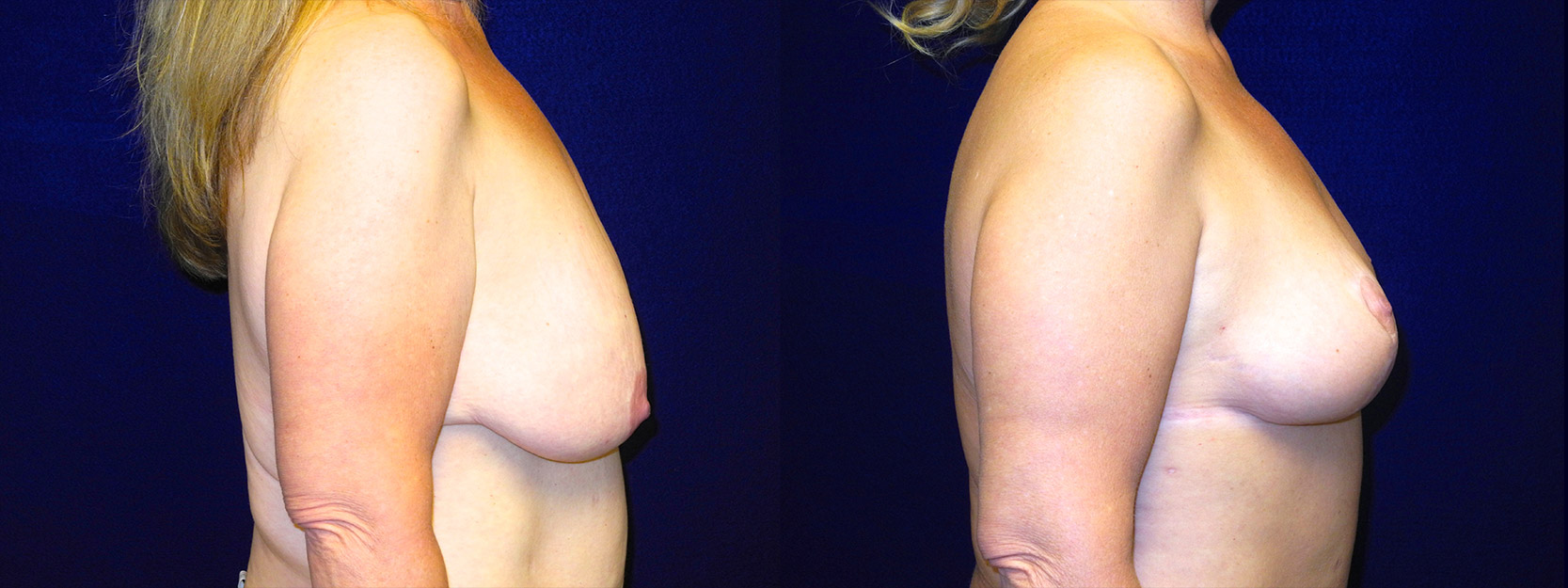 Right Profile View - Breast Lift After Massive Weight Loss