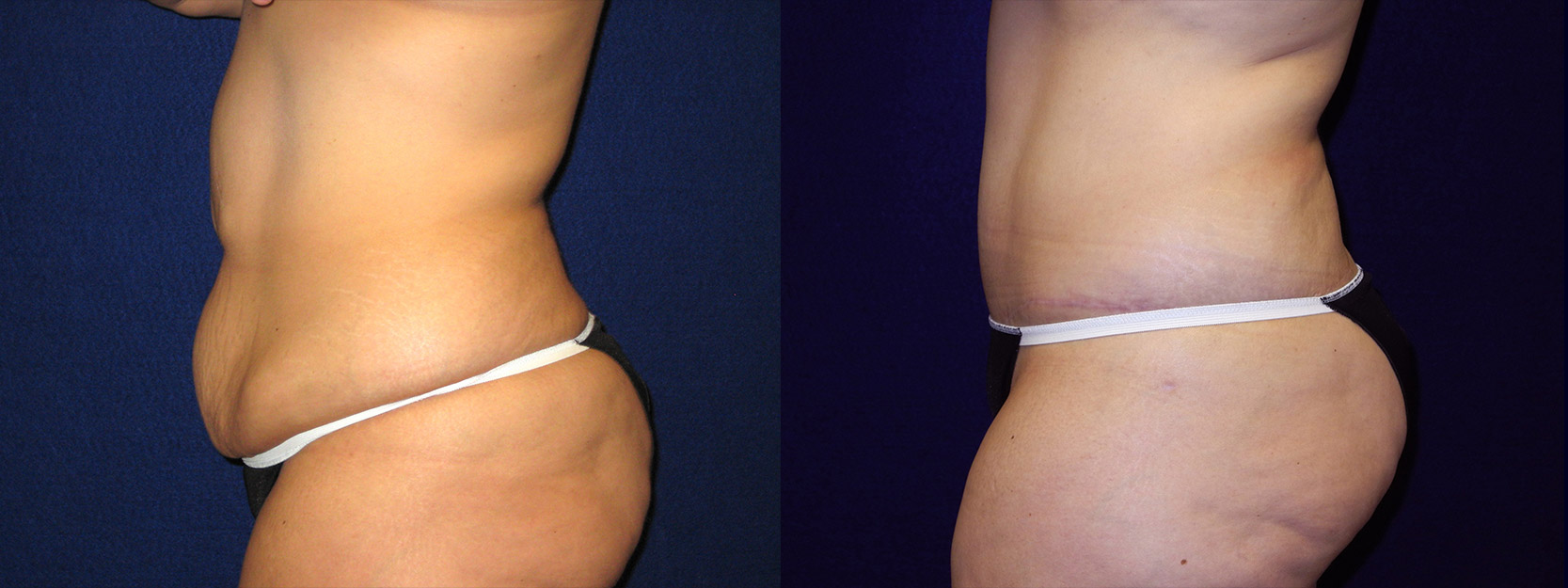 Left Profile View - Abdominoplasty After Massive Weight Loss