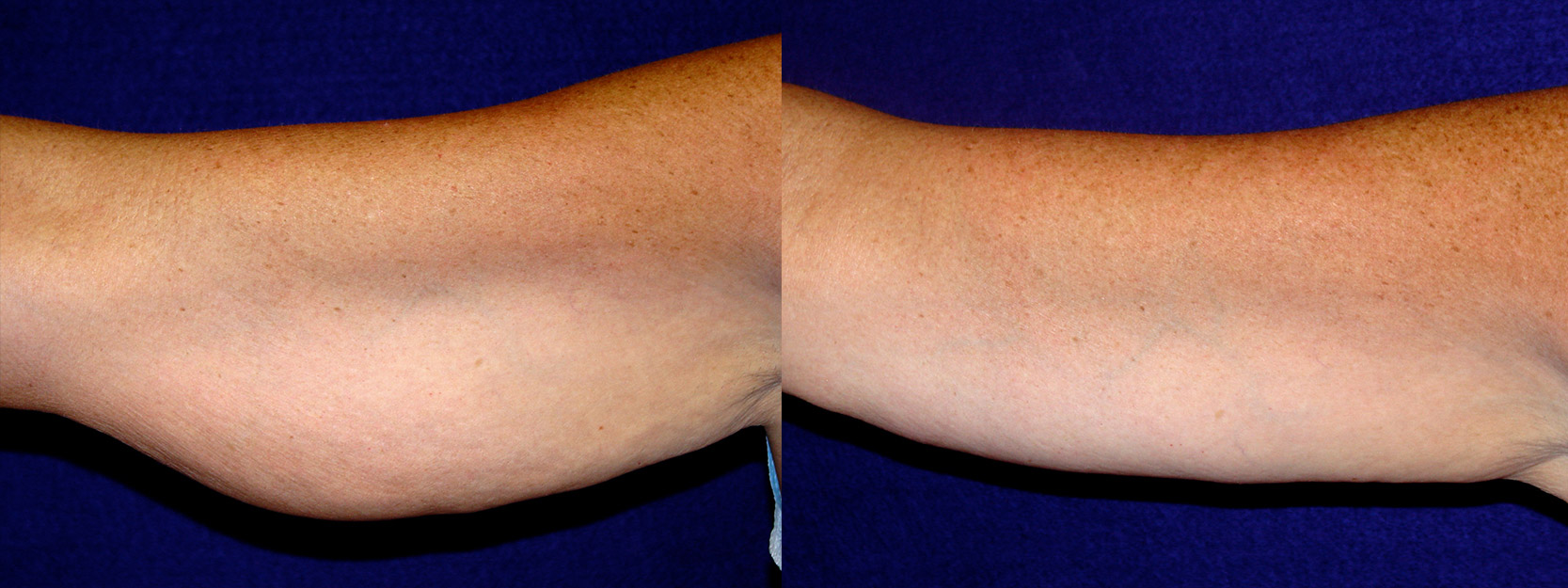 Frontal View - Right Arm - Arm Lift After Weight Loss