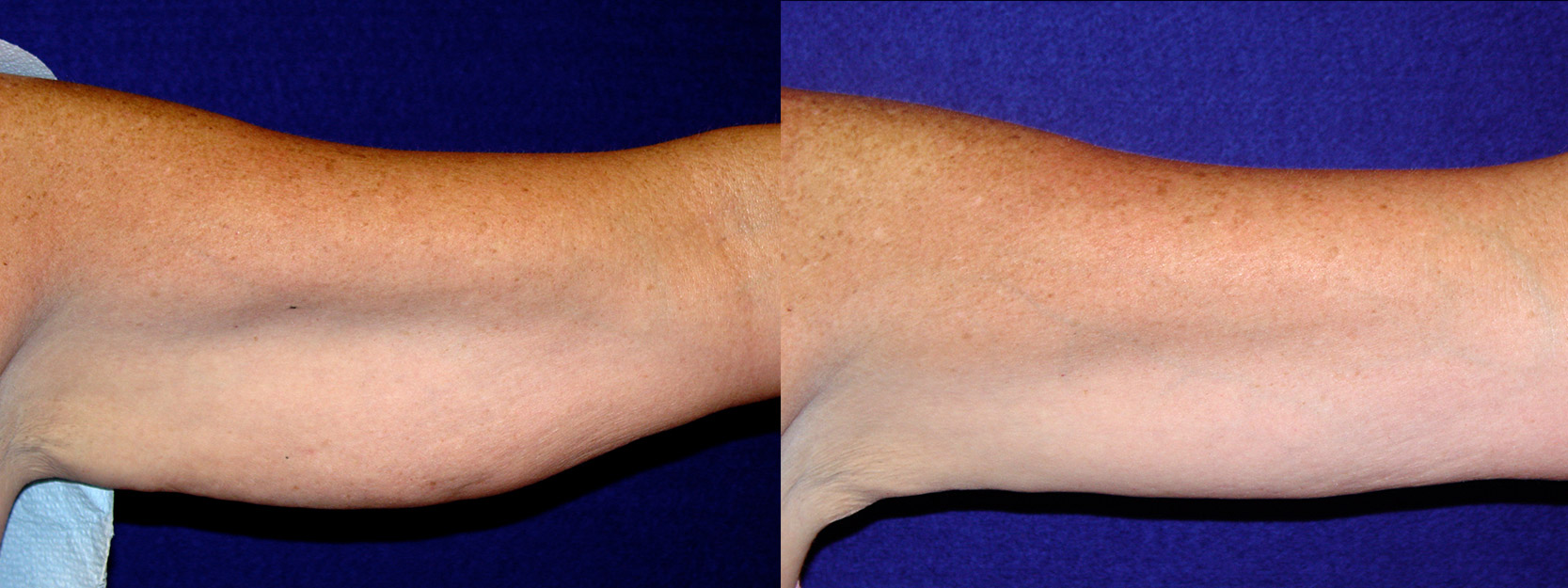 Frontal View - Left Arm - Arm Lift After Weight Loss