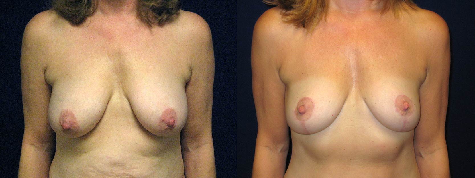 Frontal View - Breast Lift After Pregnancy