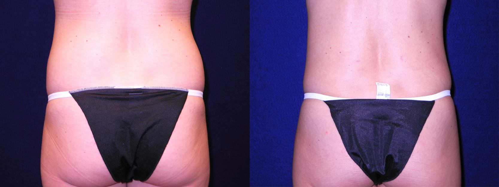 Posterior View - Tummy Tuck