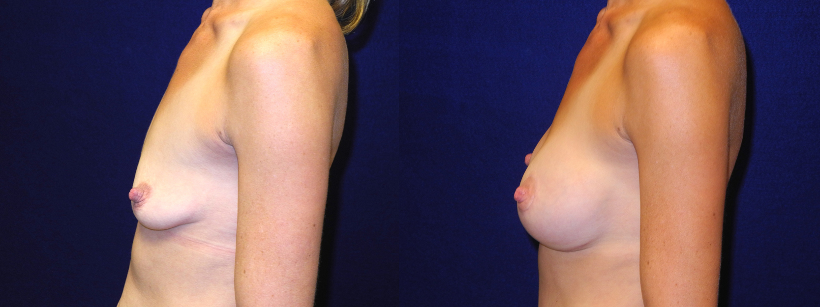 Left Profile View - Breast Augmentation with Lift