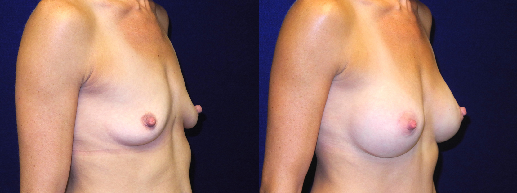 Right 3/4 View - Breast Augmentation with Lift