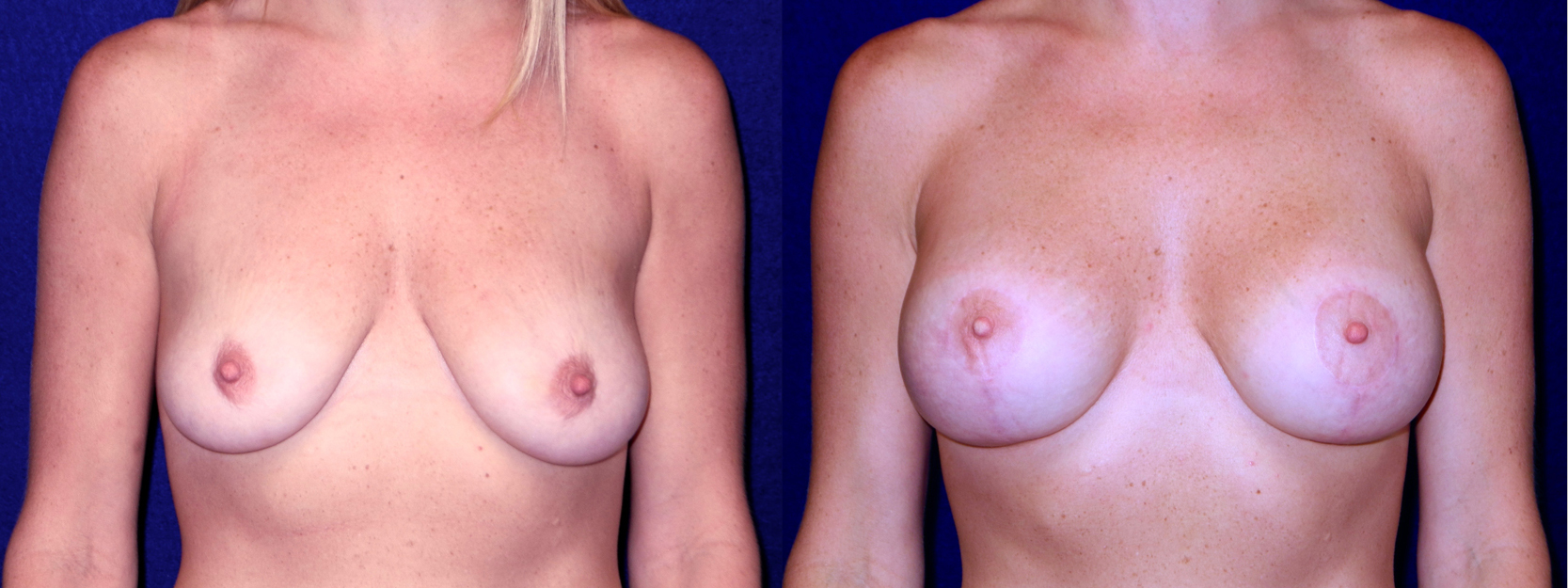Frontal View - Breast Augmentation with Lift