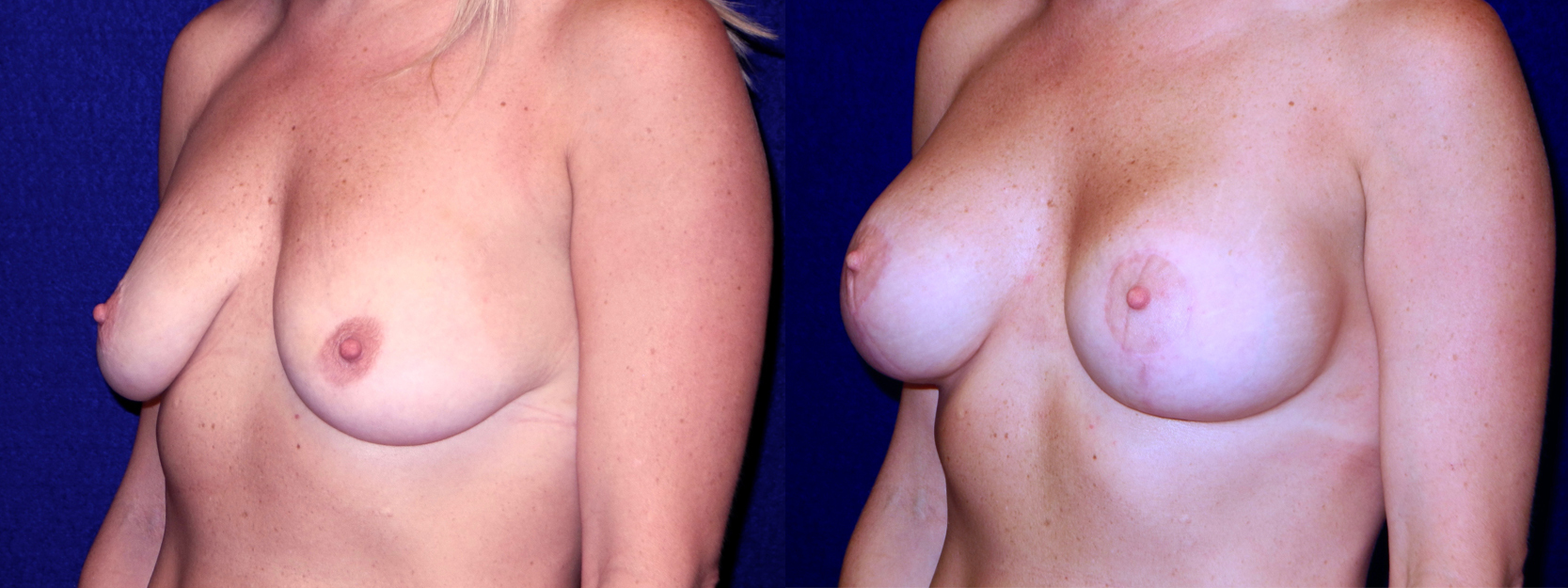 Left 3/4 View - Breast Augmentation with Lift