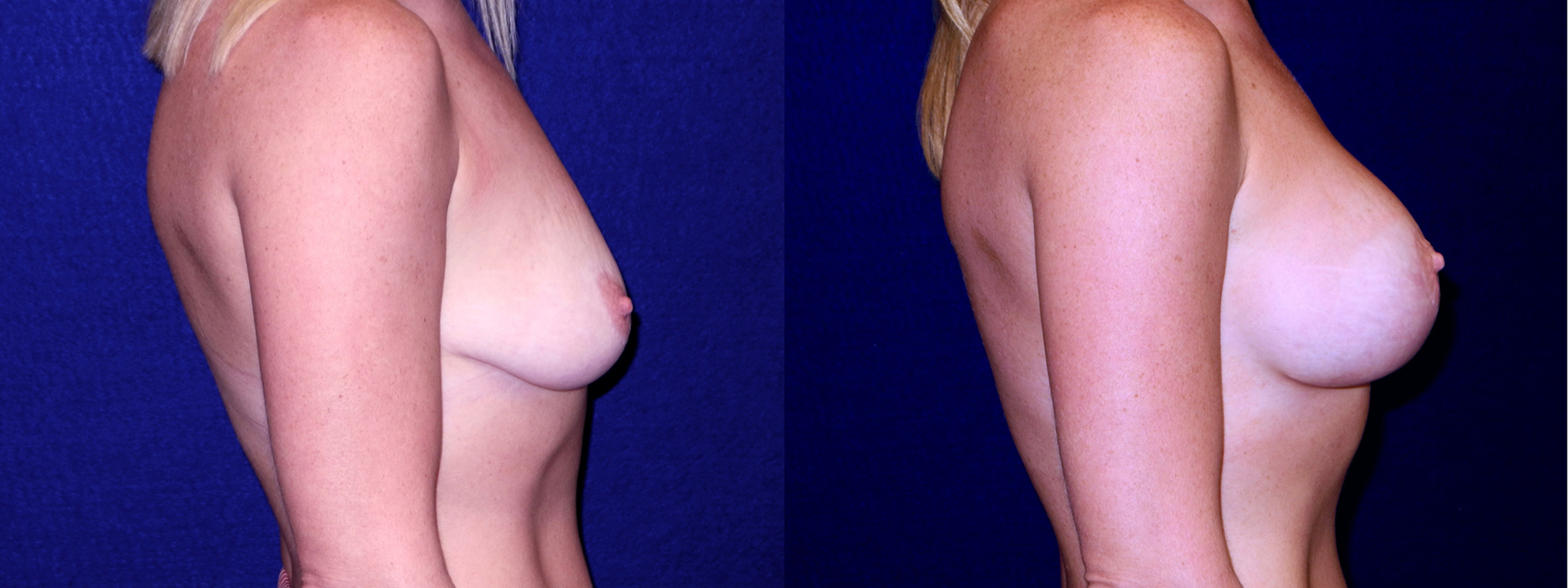 Right Profile View - Breast Augmentation with Lift