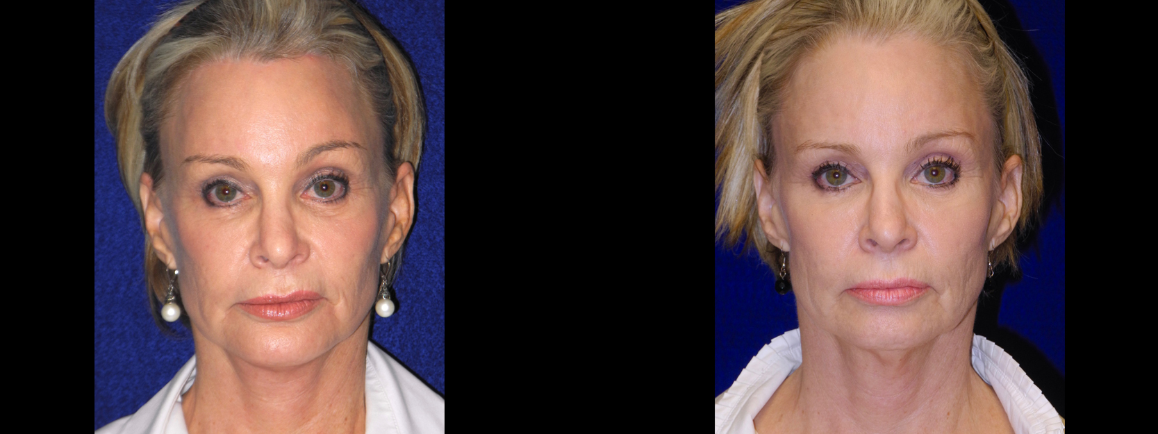 Frontal View - Facelift, Browlift, Chin Implant