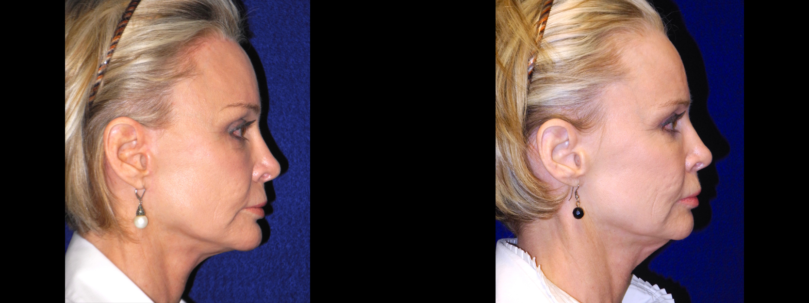 Right Profile - Facelift, Browlift, Chin Implant