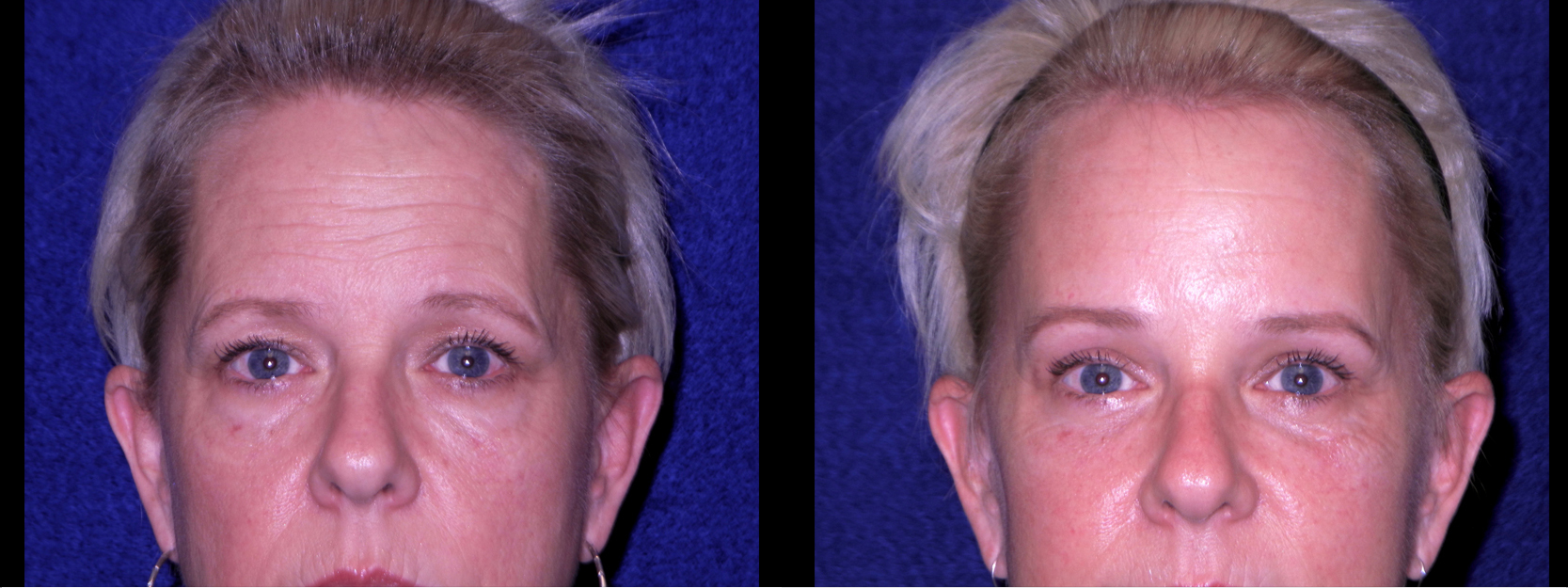 Frontal View Close Up - Facelft, Browlift and Upper Eyelid Surgery