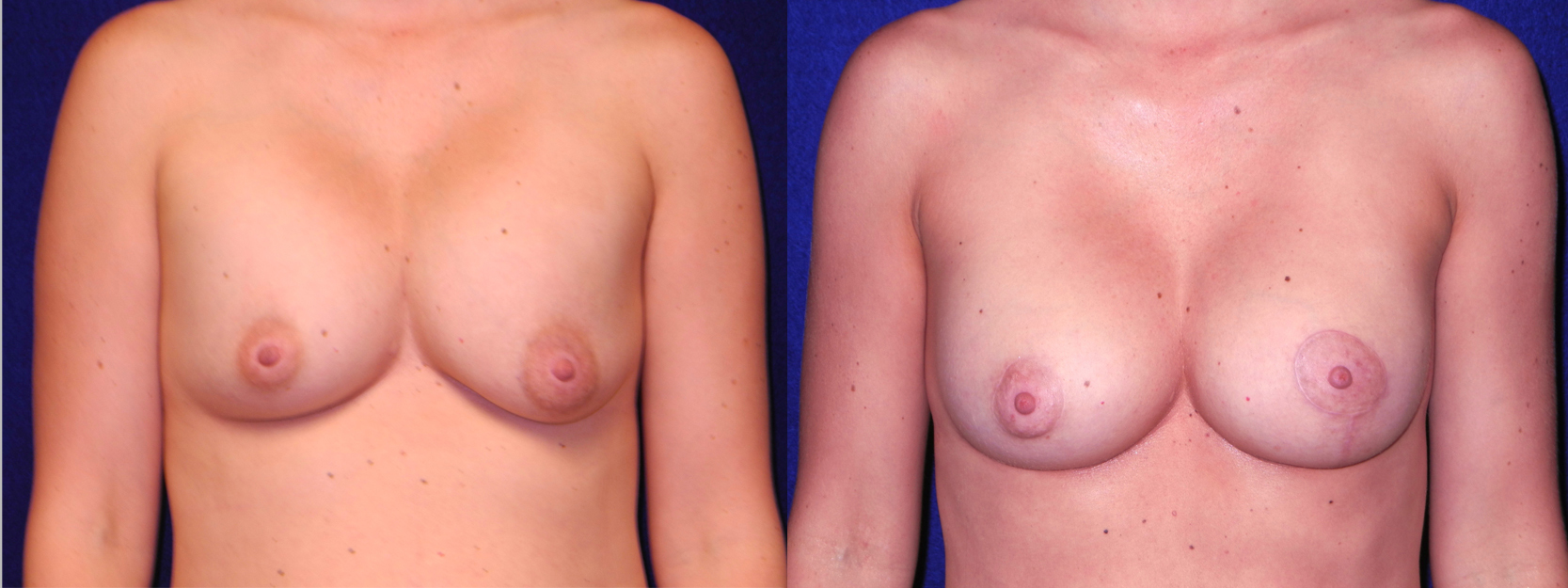 Frontal View - Implant Revision and Breast Lift