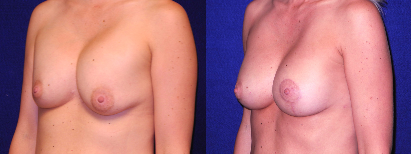 Left 3/4 View - Implant Revision and Breast Lift