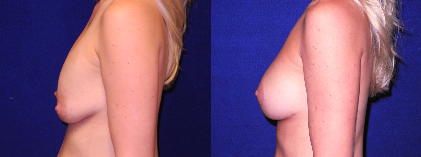 Left Profile View - Implant Revision and Breast Lift