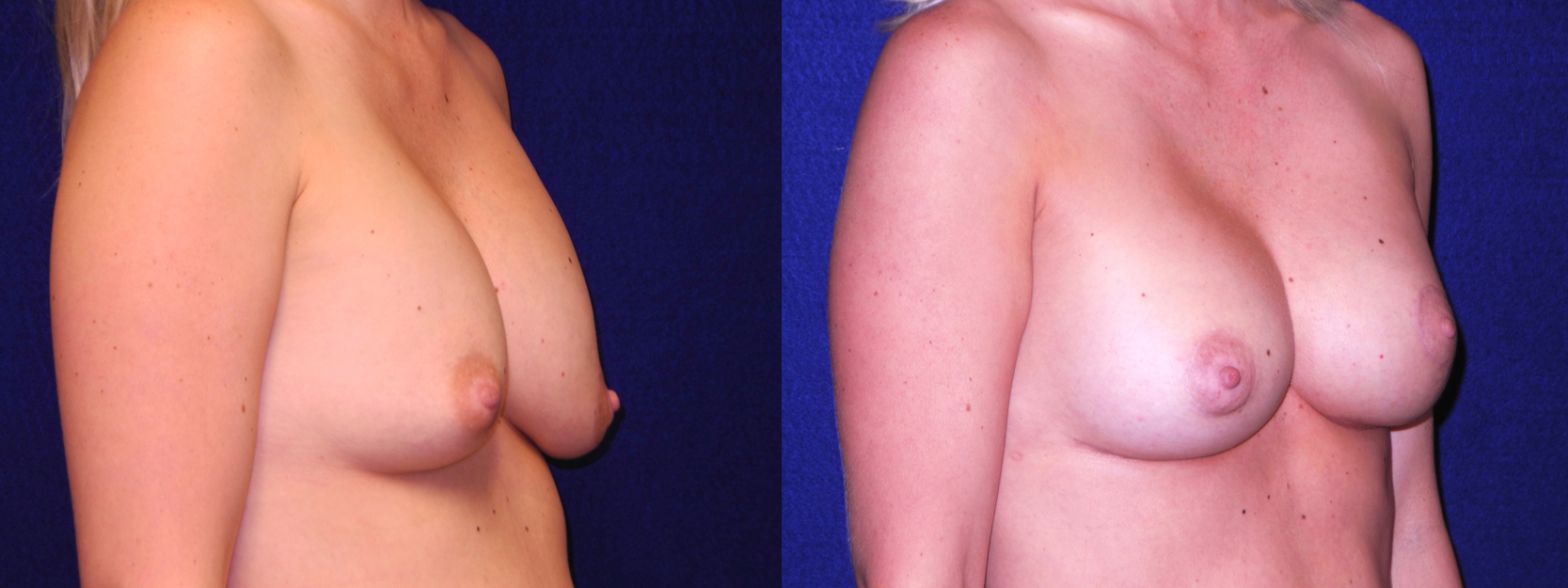 Right 3/4 View - Implant Revision and Breast Lift