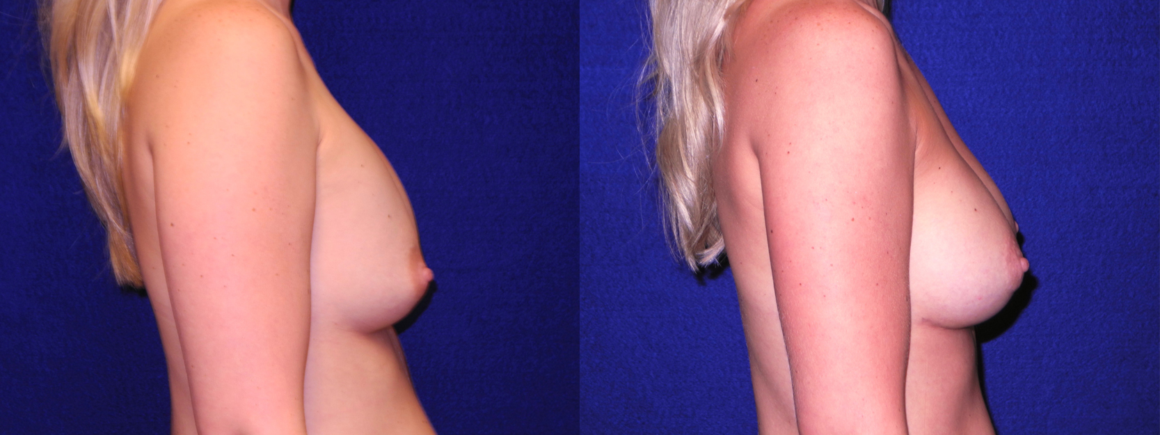 Right Profile View - Implant Revision and Breast Lift