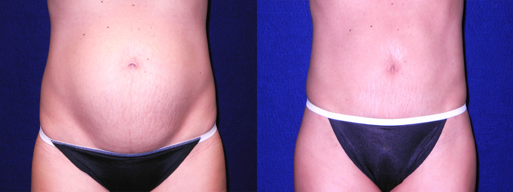 Frontal View - Mini Tummy Tuck