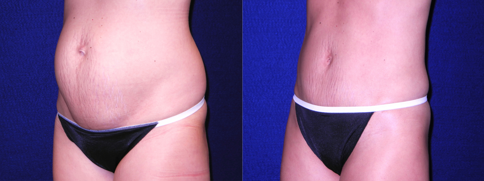 Left 3/4 View - Mini Tummy Tuck