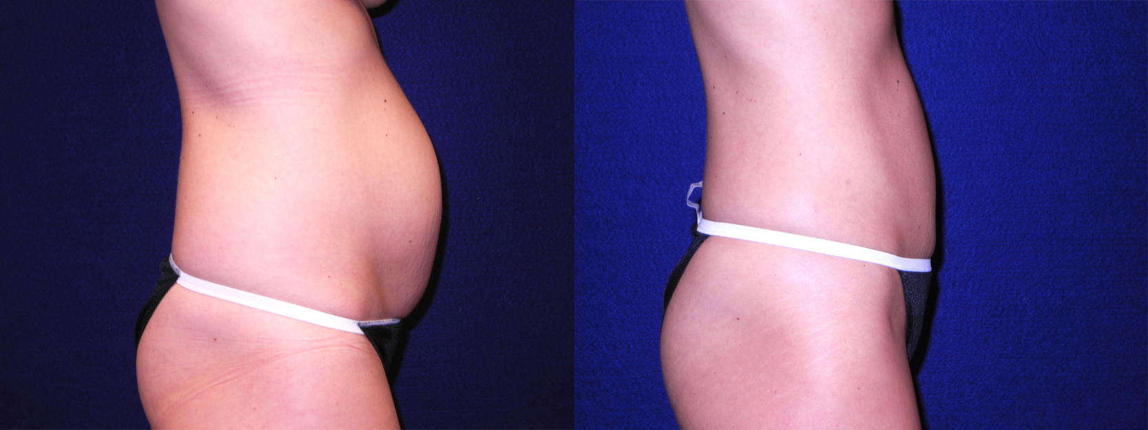 Right Profile View - Mini Tummy Tuck
