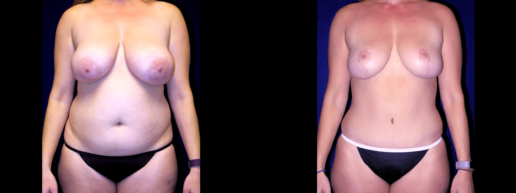 Frontal View - Breast Reduction, Tummy Tuck, Liposuction