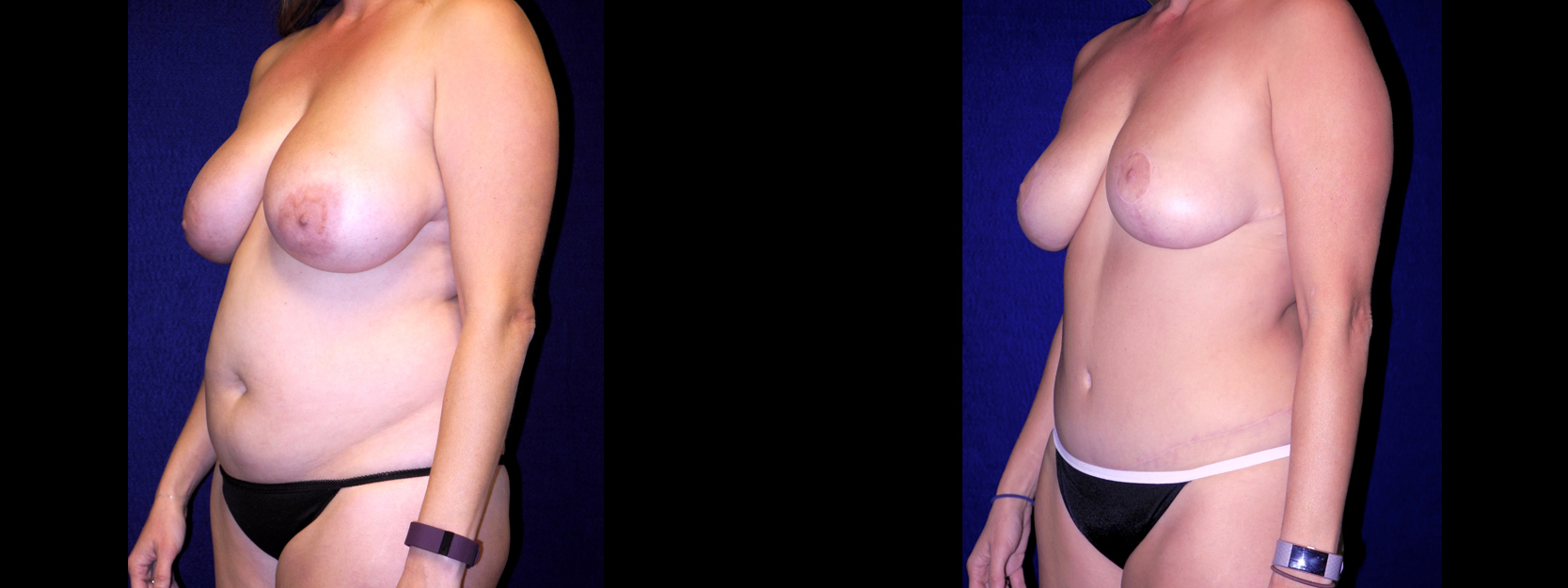 Left 3/4 View - Breast Reduction, Tummy Tuck, Liposuction