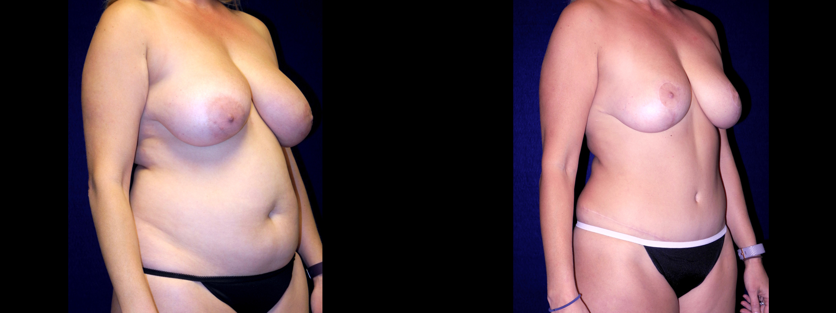 Right 3/4 View - Breast Reduction, Tummy Tuck, Liposuction