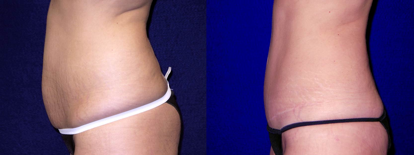 Left Profile View - Tummy Tuck