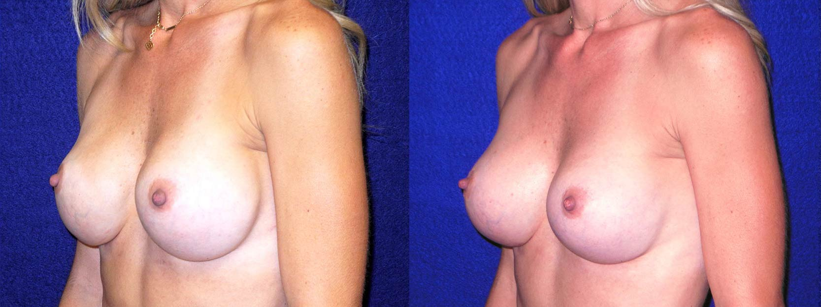 Left 3/4 View - Implant Revision with Silicone Implants