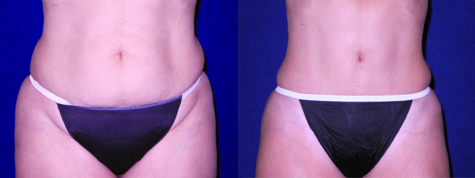 Frontal View - Tummy Tuck and Liposuction