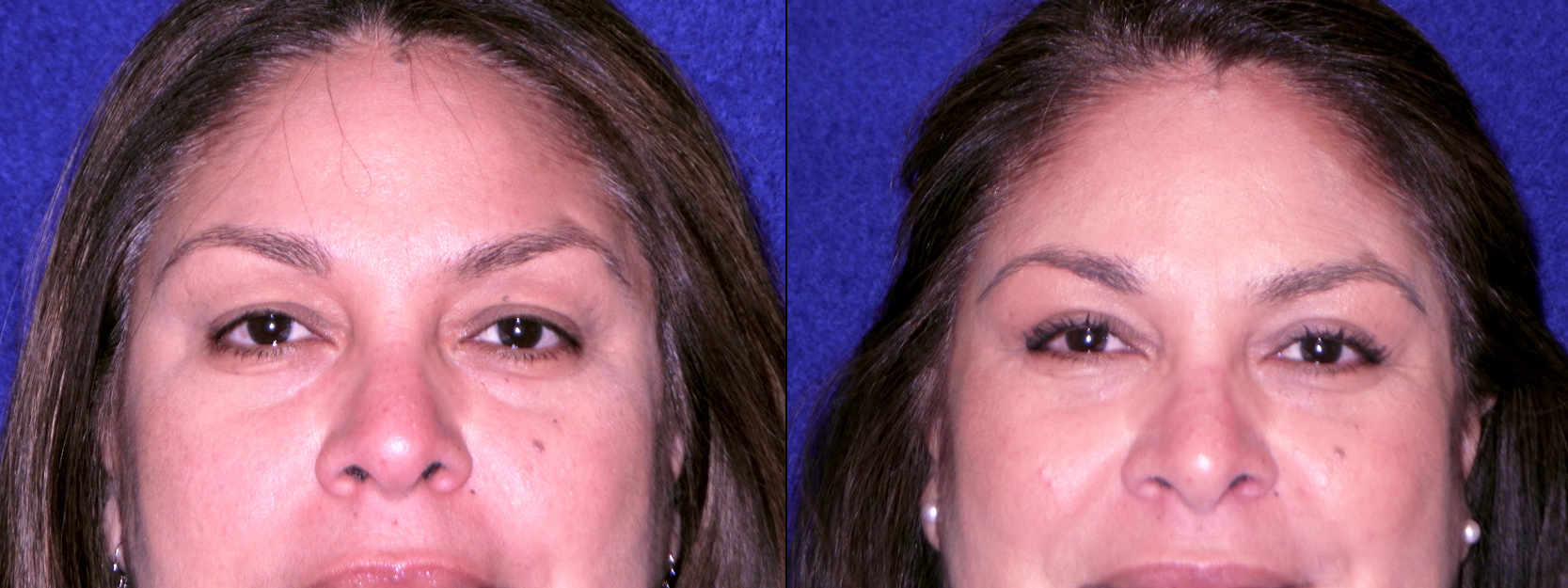 Frontal View Close Up - Upper Blepharoplasty