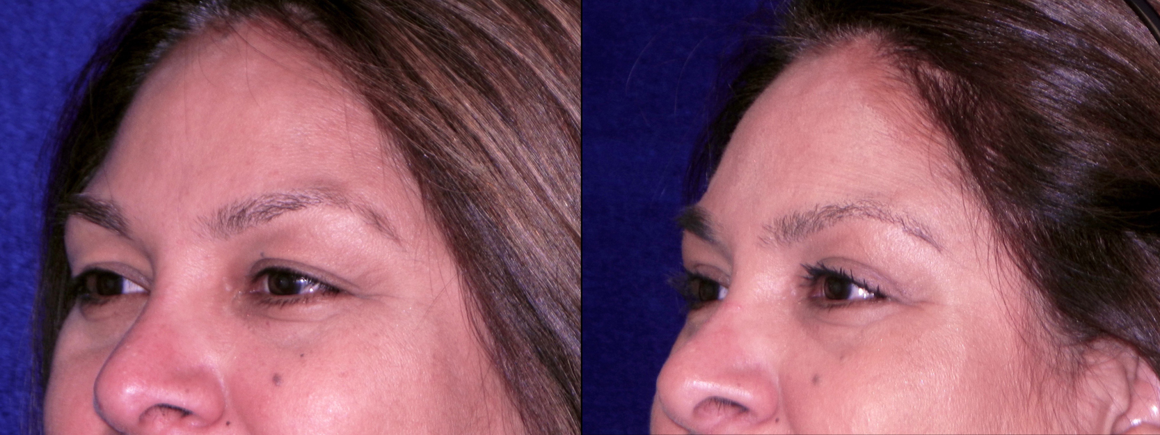 Left 3/4 View Close Up - Upper Blepharoplasty