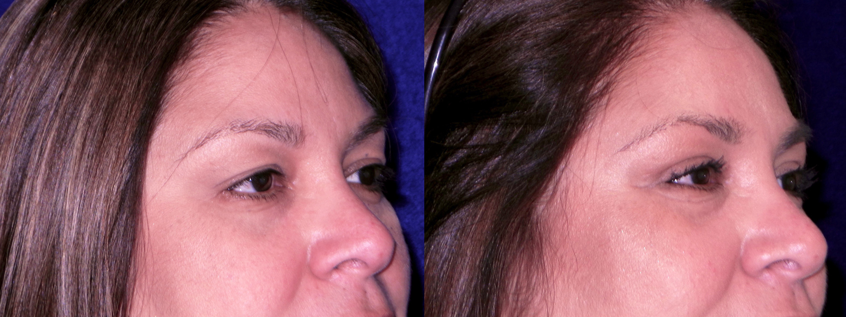 Right 3/4 View Close Up - Upper Blepharoplasty