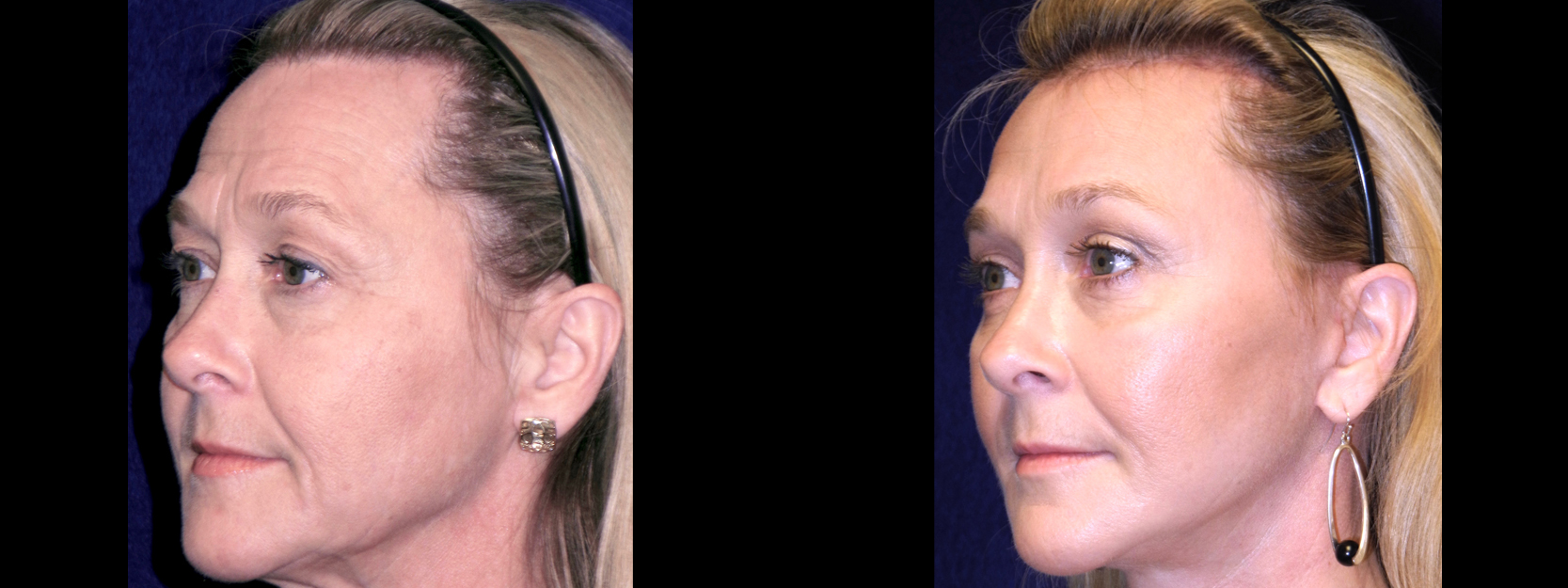Left 3/4 View - Facelft, Browlift and Upper Eyelid Surgery