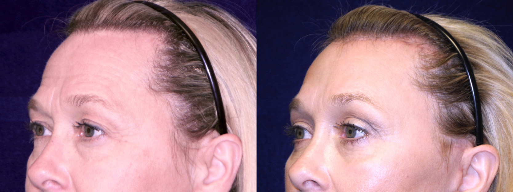 Left 3/4 View Close Up - Facelft, Browlift and Upper Eyelid Surgery