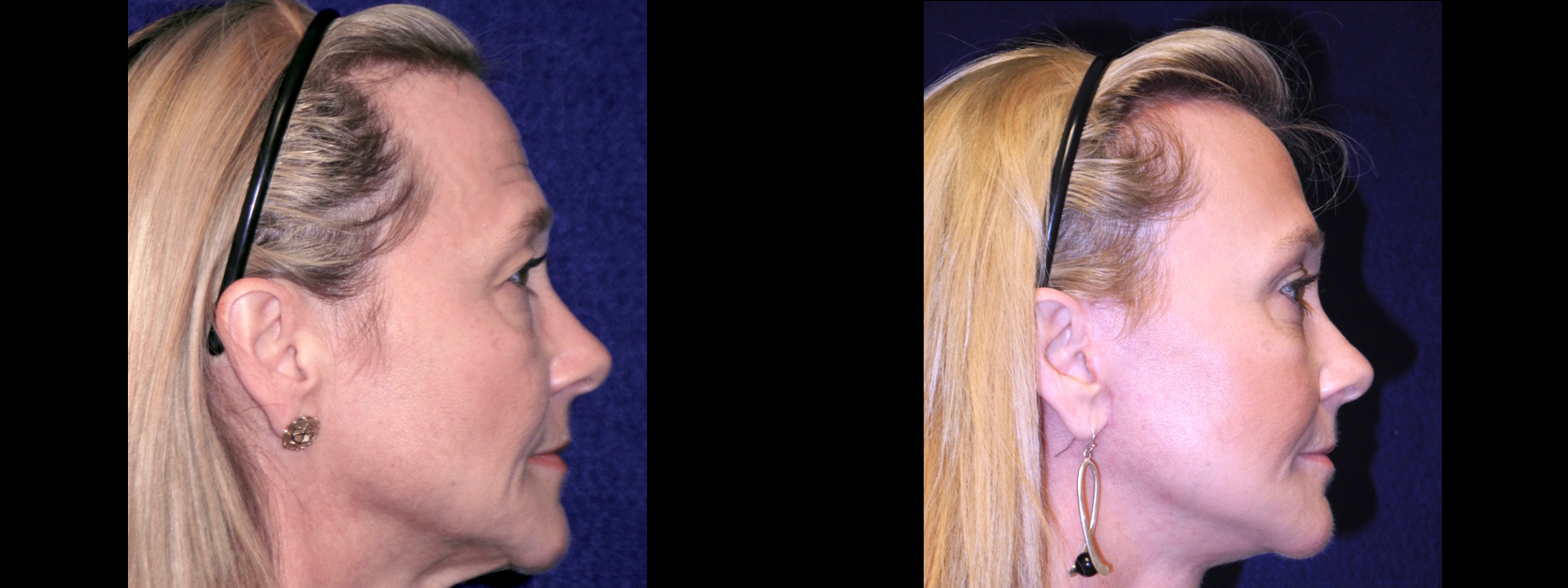 Right Profile View - Facelft, Browlift and Upper Eyelid Surgery