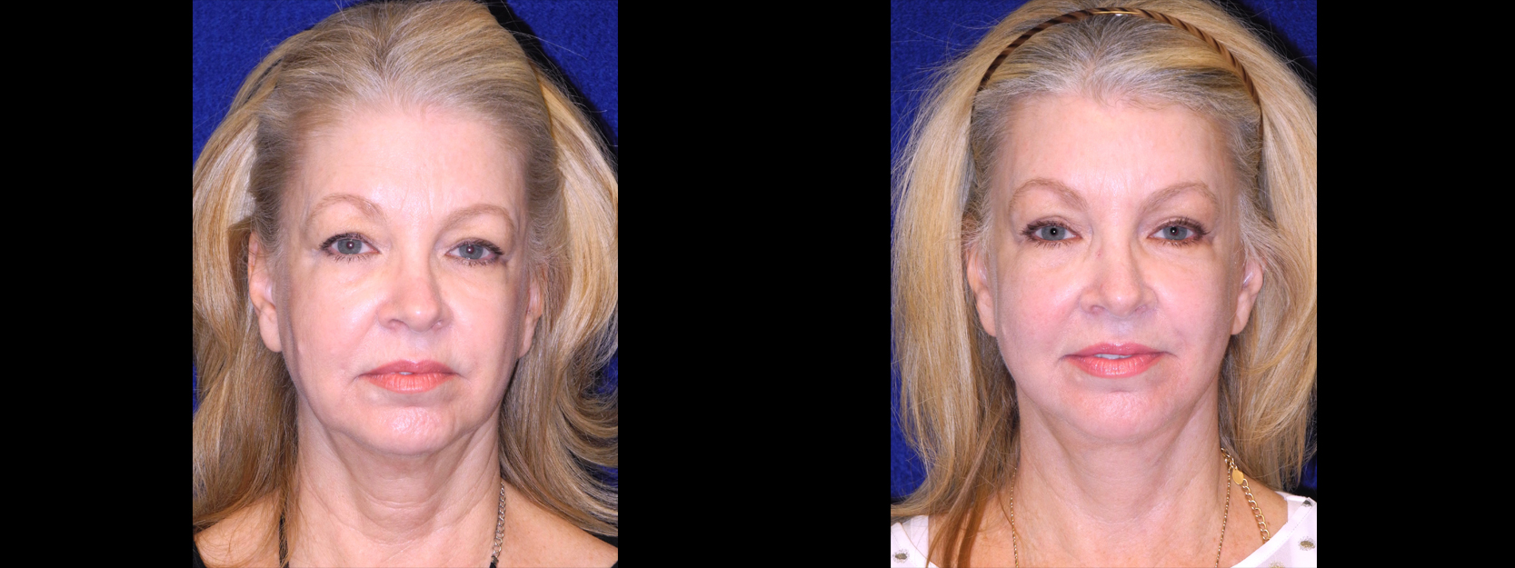 Frontal View - Facelft, Browlift and Upper Eyelid Surgery