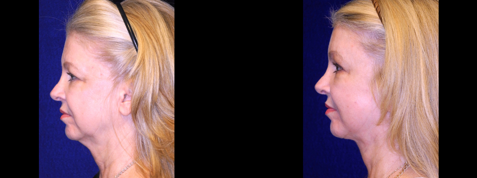 Left Profile View - Facelft, Browlift and Upper Eyelid Surgery