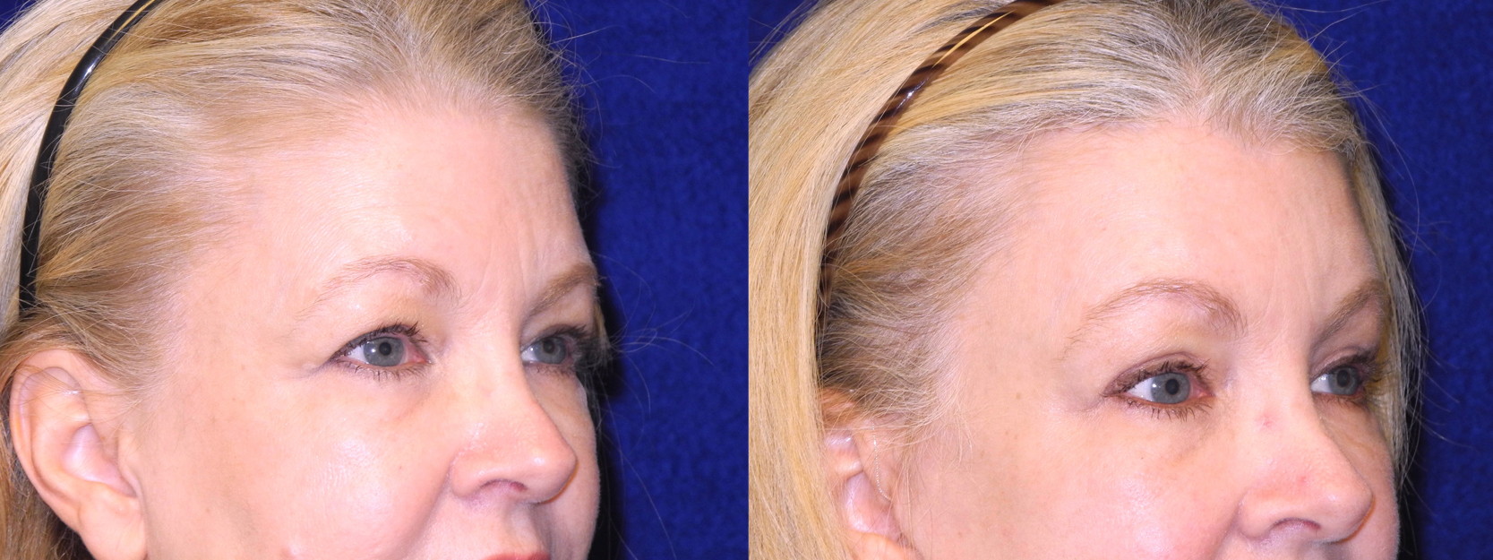 Right 3/4 View Close Up - Facelft, Browlift and Upper Eyelid Surgery