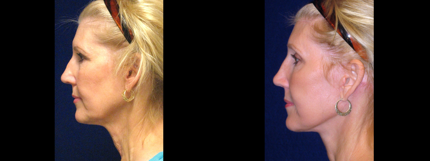 Left Profile View - Facelft and Browlift
