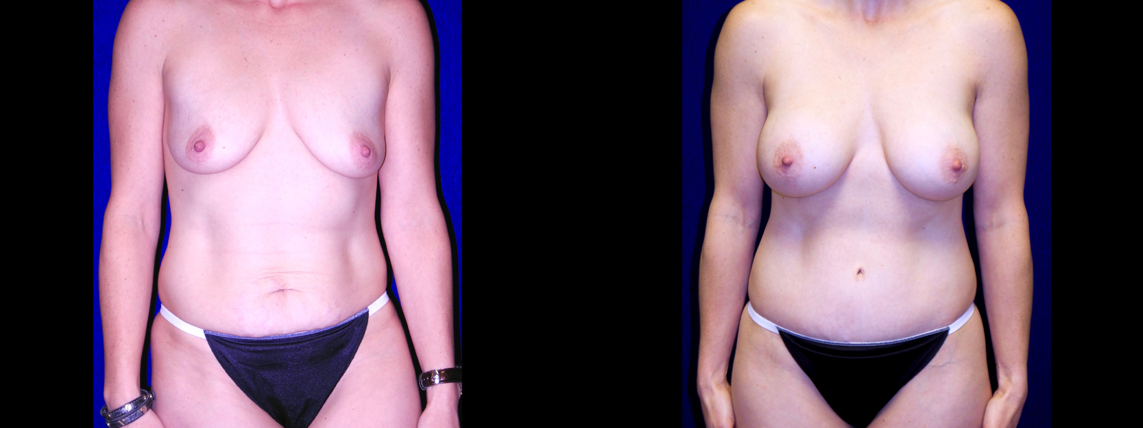 Frontal View - Breast Augmentation & Tummy Tuck
