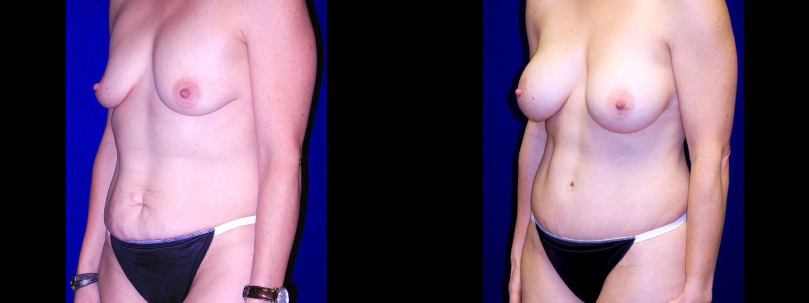 Left 3/4 View - Breast Augmentation & Tummy Tuck
