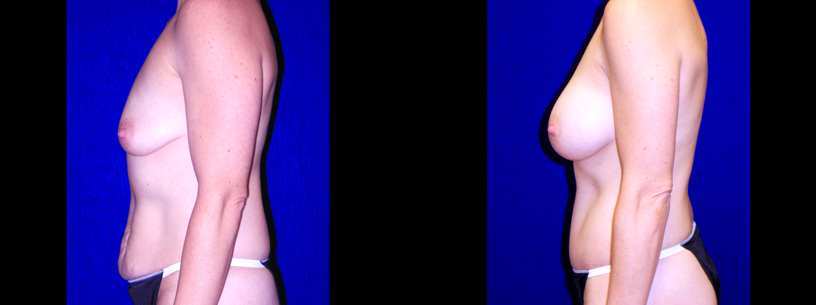 Left Profile View - Breast Augmentation & Tummy Tuck