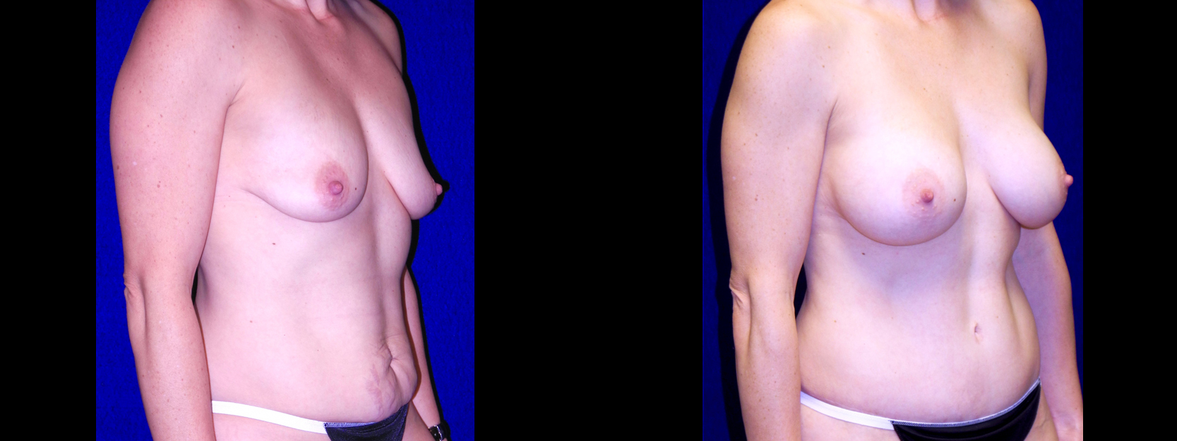 Right 3/4 View - Breast Augmentation & Tummy Tuck