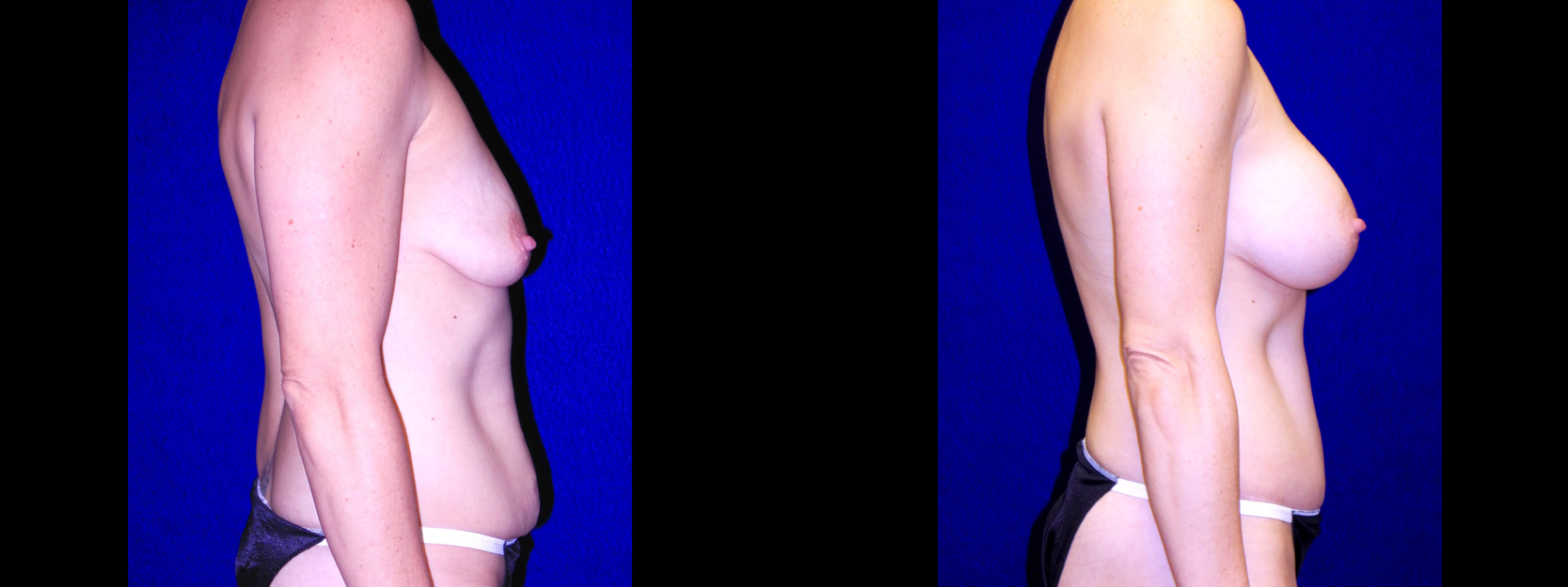 Right Profile View - Breast Augmentation & Tummy Tuck