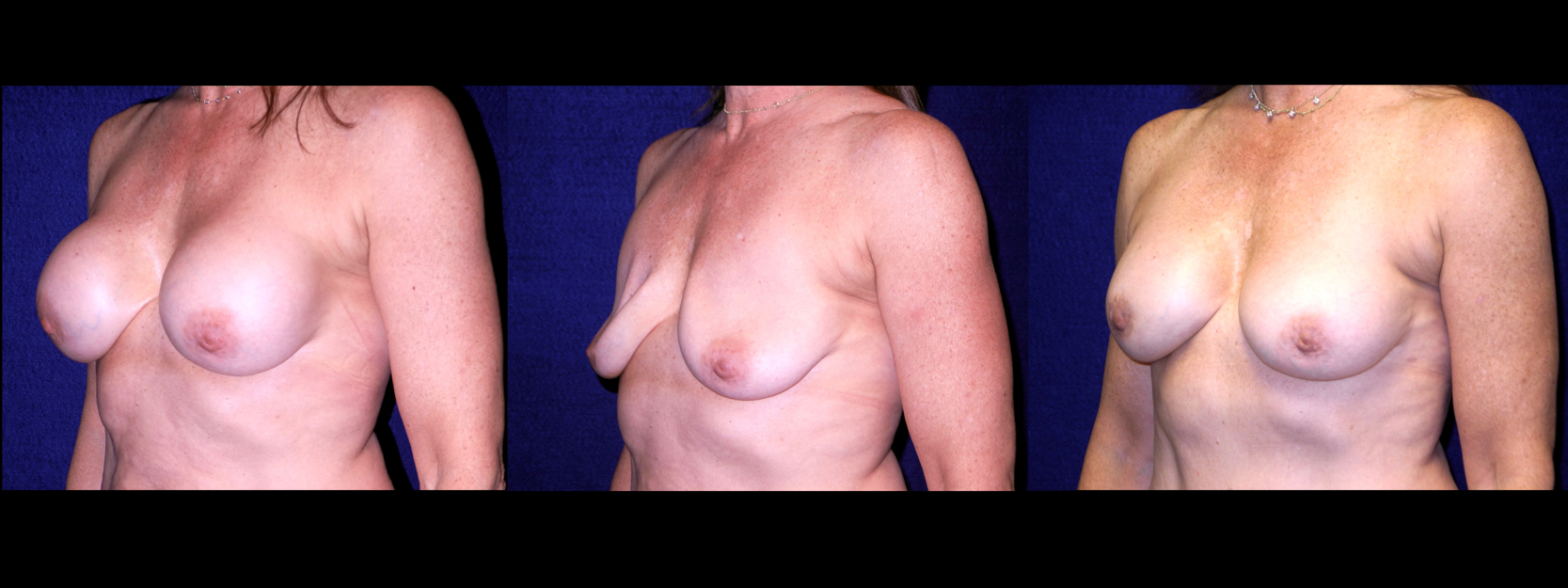Left 3/4 View - Implant Revision - Contracted Saline, Deflated, Replaced with Silicone Implants